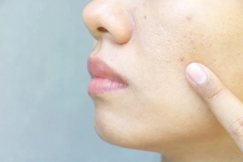 Best Treatment for Large Pores